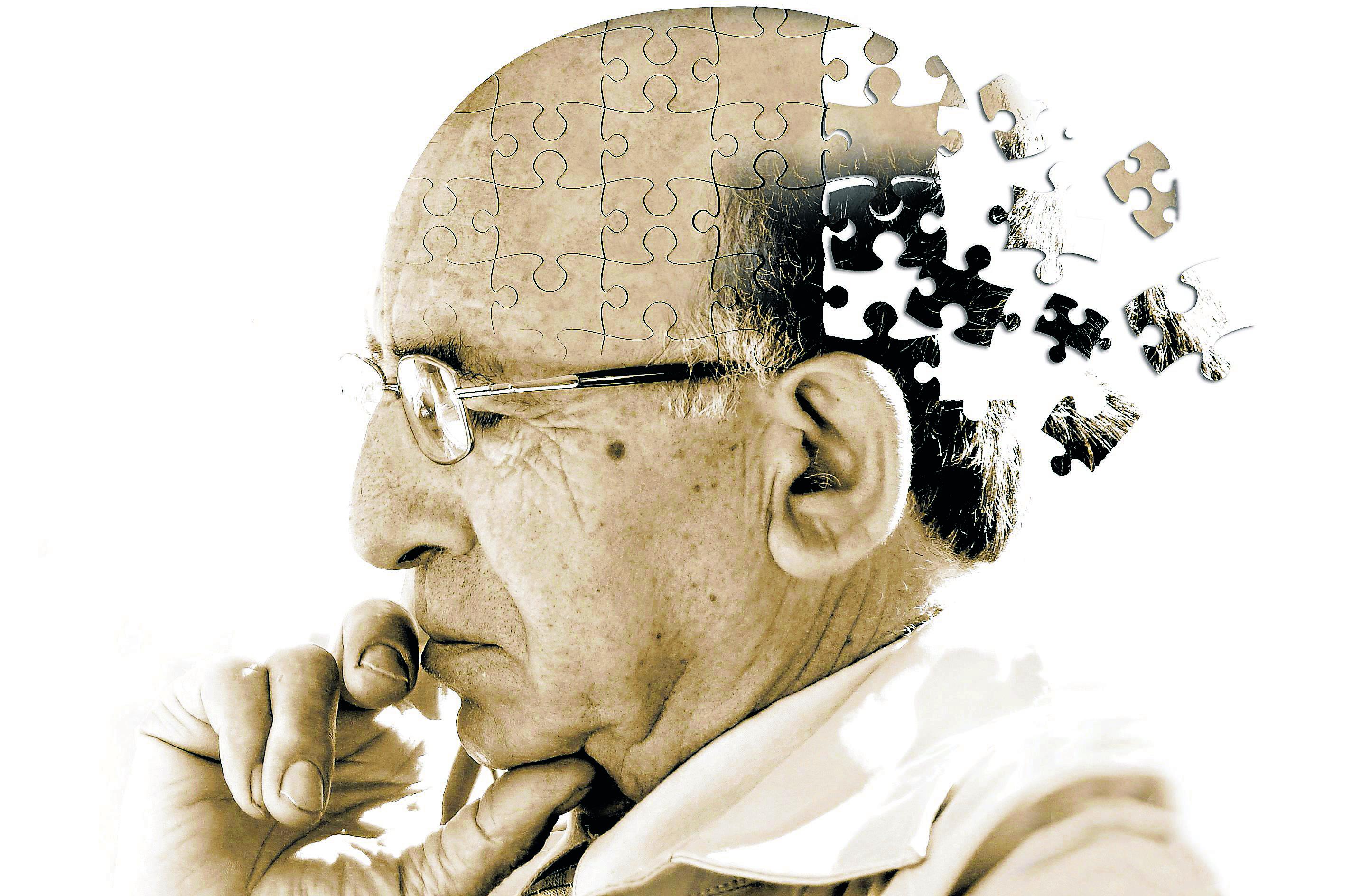 Alzheimer, a doença do século